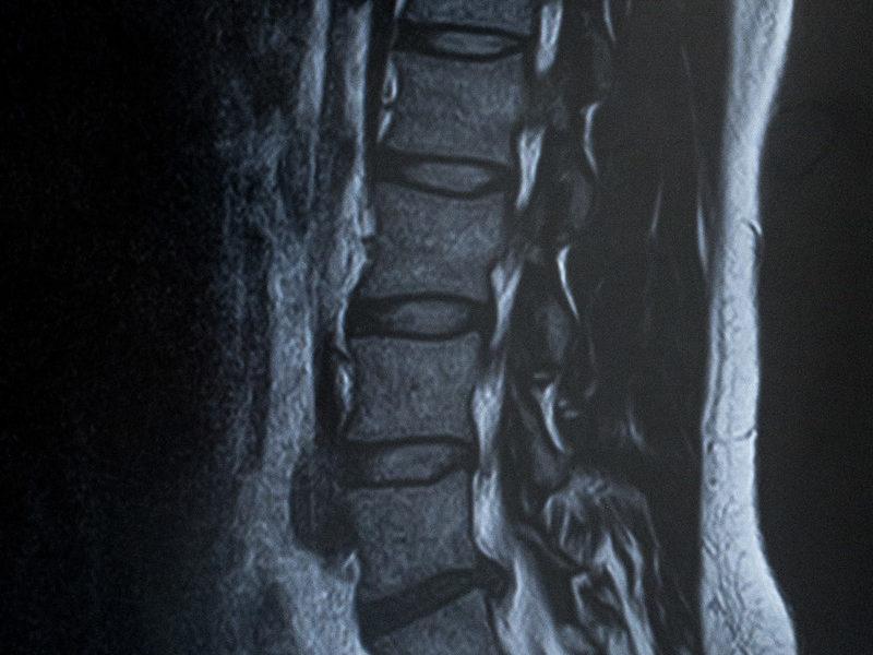 腰から足先にかけての痛みや痺れ、『坐骨神経痛』ってなんだろう?