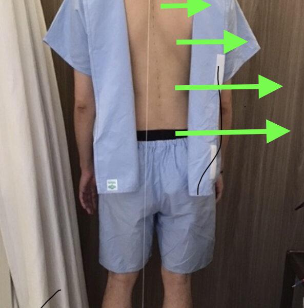 ギックリ腰 骨盤の真ん中の上の痛み 30代男性